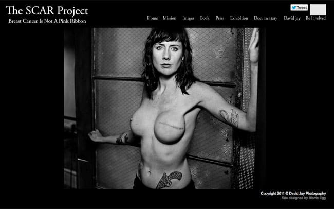 The SCAR Project: Breast Cancer is not  a pink ribbon.